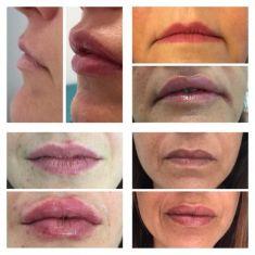 D.ssa Maria Benvenuto - Rimpolpamento e rimodellamento delle labbra con acido ialuronico specifico