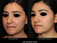 Acne laser, Cicatrici da acne laser - Foto del prima