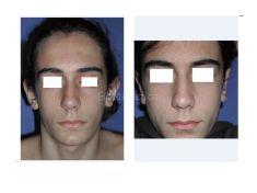 Operazione orecchie (Otoplastica) - Otoplastica mista