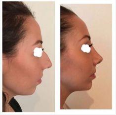 Rinoplastica - Rinosettoplastica chiusa, senza cicatrici cutanee, e aumento della proiezione del mento con acido ialuronico! Risultato a 3 settimane con margine di miglioramento per riduzione dell
