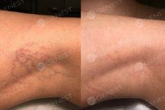 Eliminare capillari e teleangectasie con laser - Foto del prima - Dott. Fabio Chemello CENTRO MEDICO GENESY