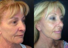 Lifting viso - Foto del prima - Dott. Massimo Re - Chirurgo plastico ed estetico