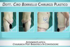 Addominoplastica - Foto del prima - Dott. Ciro Borriello