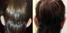 Operazione orecchie (Otoplastica) - Foto del prima - Dott. Massimo Re - Chirurgo plastico ed estetico