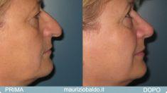 Rinoplastica - Foto del prima - Dott. Maurizio Baldo M.D.