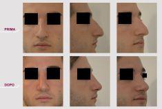 Rinoplastica - Rinoplastica Naso Storto Sporgente