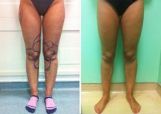 Liposuzione - Liposcultura arti inferiori fronte, caviglie ginocchia e trocanteri