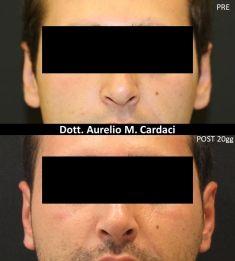 Operazione orecchie (Otoplastica) - Foto del prima - Dott. Aurelio M. Cardaci