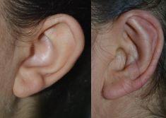Operazione orecchie (Otoplastica) - L