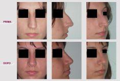 Rinoplastica - Rinoplastica Naso Storto Aquilino