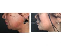 Liposuzione laser - Smart Lipo - Foto del prima
