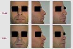Rinoplastica - Rinoplastica Naso Corto Aquilino
