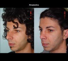 Rinoplastica - Foto del prima - Prof. Franco Migliori