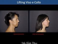 Dott.ssa Chiara Botti - Foto del prima - Dott.ssa Chiara Botti