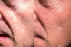 Anti aging - Foto del prima - Dott. Fabio Chemello CENTRO MEDICO GENESY