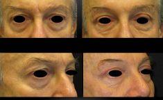 Blefaroplastica inferiore - Foto del prima
