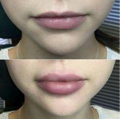 Aumento labbra - Foto del prima - Dott.ssa Carolina Turcan