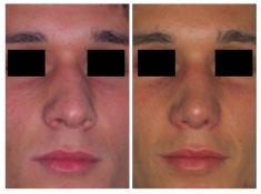 Settoplastica (operazione al setto nasale) - Foto del prima