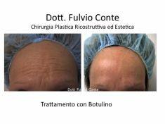 Trattamento delle rughe con botulino - Foto del prima - Dott. Fulvio Conte Prof.