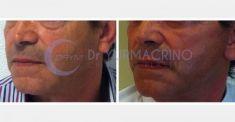 Lifting viso - Foto del prima - Dott. Yuri Macrino M.D.