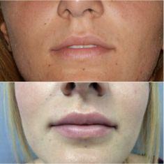 Aumento labbra con Permalip - Foto del prima - Dott. Cristiano Biagi