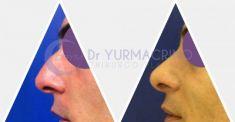 Rinoplastica - Foto del prima - Dott. Yuri Macrino M.D.