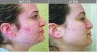 Acne laser, Cicatrici da acne laser - Foto del prima - Dr. Luigi Mazzi