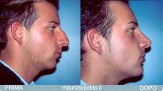 Profiloplastica (Rinoplastica e Mentoplastica) - Foto del prima - Dott. Maurizio Baldo M.D.
