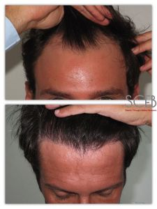 Trapianto capelli - Foto del prima - Dott. Manuel De Giovanni