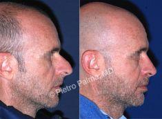 Rinoplastica - Foto del prima - Prof. Pietro Palma MD, FACS