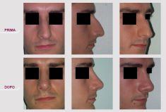 Rinoplastica - Rinosettoplastica Naso Deviato
