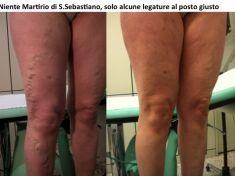 Vene varicose rimedi - CHIVA - Foto del prima - Prof. Stefano Ermini