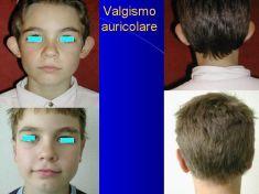 Operazione orecchie (Otoplastica) - Foto del prima - Dott. Tommaso Savoia Med