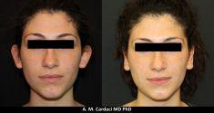 Operazione orecchie (Otoplastica) - Creazione antelice con tecnica di Mustardè