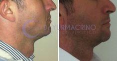 Profiloplastica (Rinoplastica e Mentoplastica) - Foto del prima - Dott. Yuri Macrino M.D.