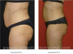 Liposuzione - Foto del prima - Dott. Sebastian Torres Farr