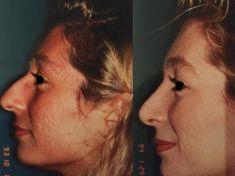 Rinoplastica - Foto del prima - Dott. Fioravante Orefice