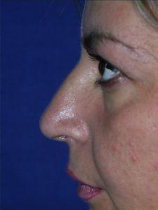 Rinoplastica - Anestesia locale e sedazione