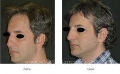 Lipofilling (grasso) - Foto del prima - Dott. Sebastian Torres Farr