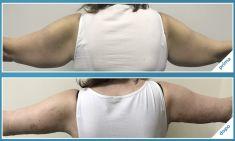 Lifting delle braccia - Foto del prima - Dott. Ciro Borriello