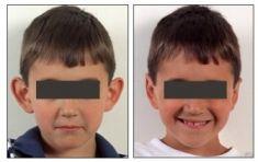 Operazione orecchie (Otoplastica) - Operazione Orecchie