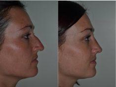 Rinoplastica - Dottor Campiglia ha corretto sia la forma che le dimensione del naso.