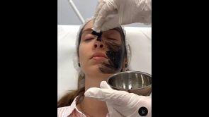 Peeling - Dr Uberto Giovannini PhD