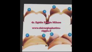 Modello 3D di seno per aiutare la donna alla migliore scelta - Dott. Egidio Riggio