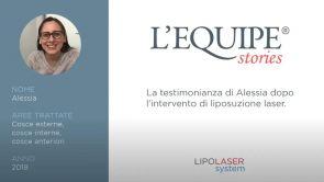 Testimonianza di Alessia post Liposuzione laser alle cosce esterne