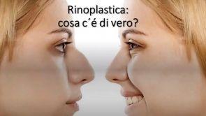 Rinoplastica: ecco tutte le risposte alle vostre domande! Dr Paolo Montemurro