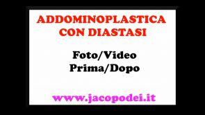 Addominoplastica con diatasi - Dott. Jacopo Dei