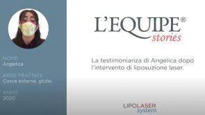 Testimonianza di Angelica post liposuzione laser cosce e glutei