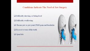 Orthognathic surgery and its types