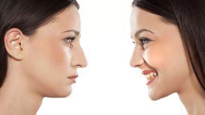 Correzione della punta del naso